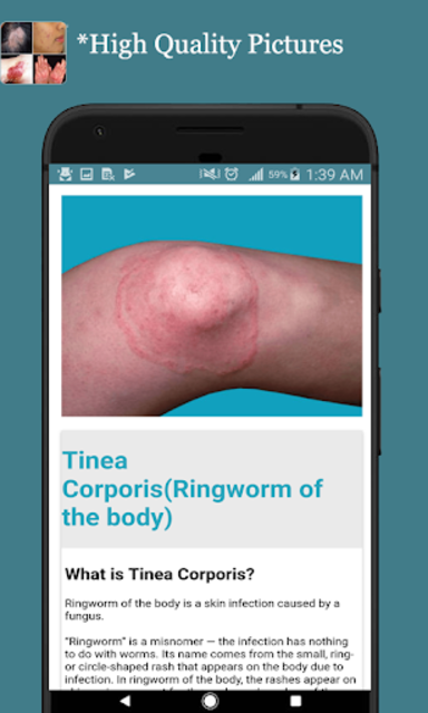 All Skin Diseases and Treatment- A to Z screenshot 13