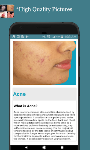 All Skin Diseases and Treatment- A to Z screenshot 18