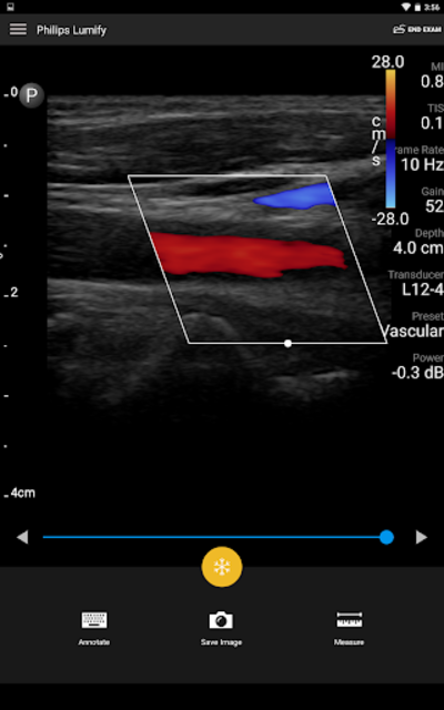 Philips Lumify Ultrasound App screenshot 6