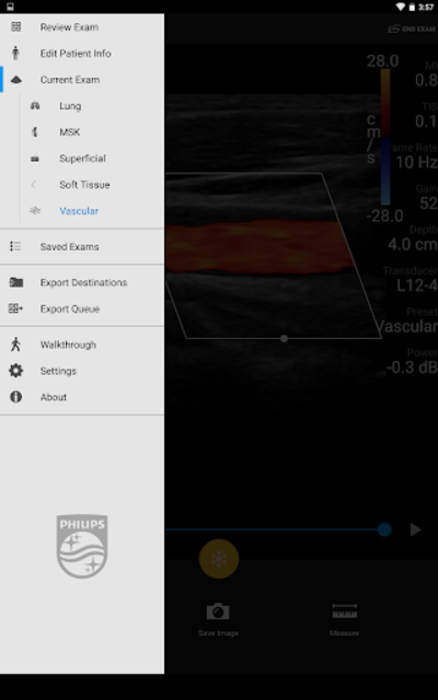 Philips Lumify Ultrasound App screenshot 7