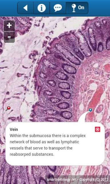 smart Histology screenshot 4