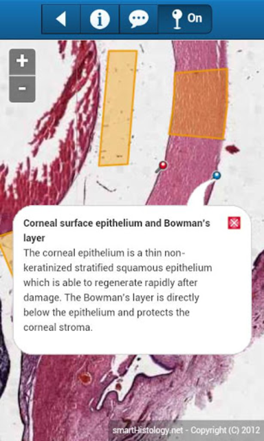 smart Histology screenshot 5