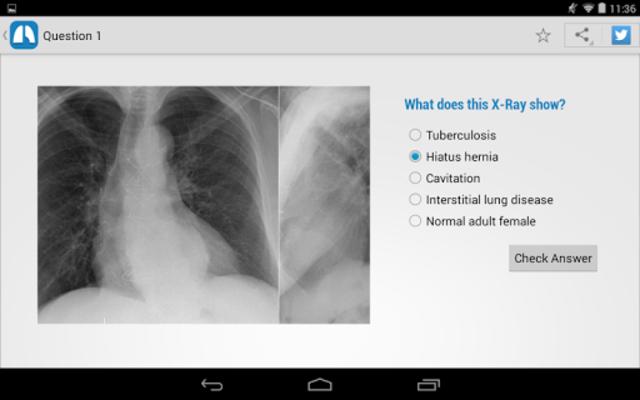 Chest X-Ray Training screenshot 9