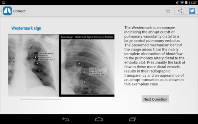 Chest X-Ray Training screenshot 11
