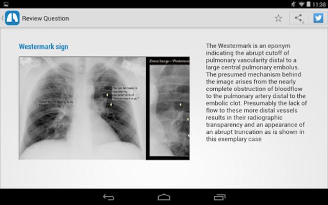 Chest X-Ray Training screenshot 13