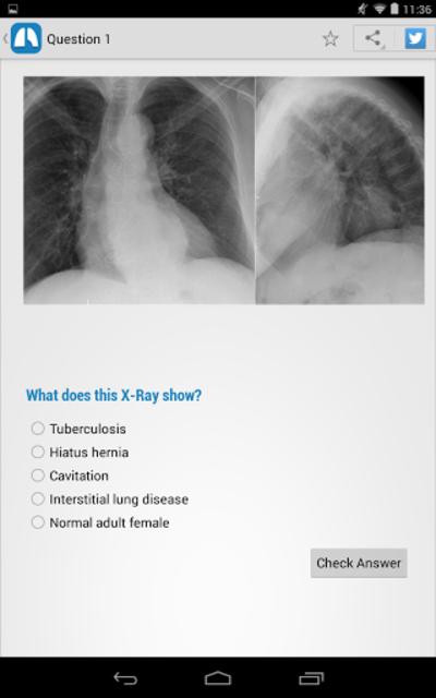 Chest X-Ray Training screenshot 15