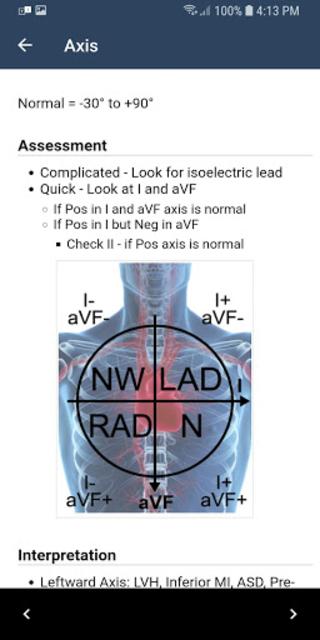 ECG Guide by QxMD screenshot 3