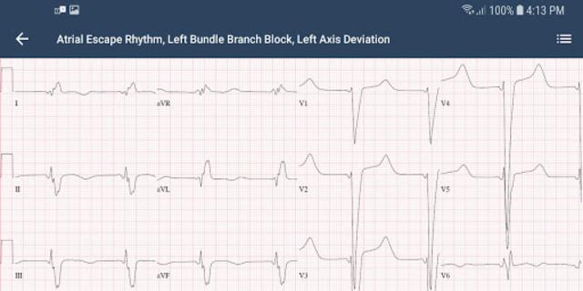 ECG Guide by QxMD screenshot 4