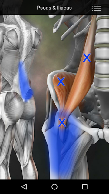 Muscle Trigger Point Anatomy screenshot 3