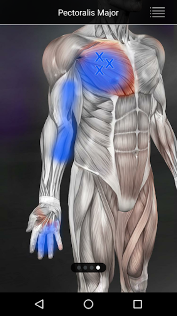 Muscle Trigger Point Anatomy screenshot 18