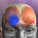 Icon for Muscle Trigger Point Anatomy