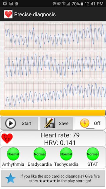 Cardiac diagnosis (arrhythmia) screenshot 3