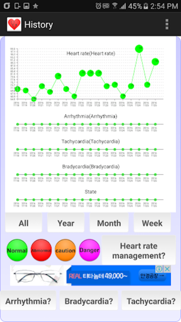 Cardiac diagnosis (arrhythmia) screenshot 4
