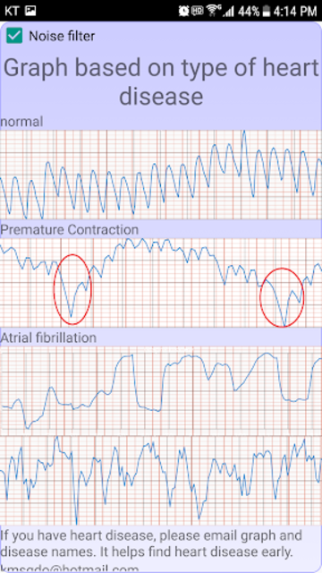 Cardiac diagnosis (arrhythmia) screenshot 7