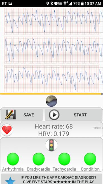 Cardiac diagnosis (heart rate, arrhythmia) screenshot 4
