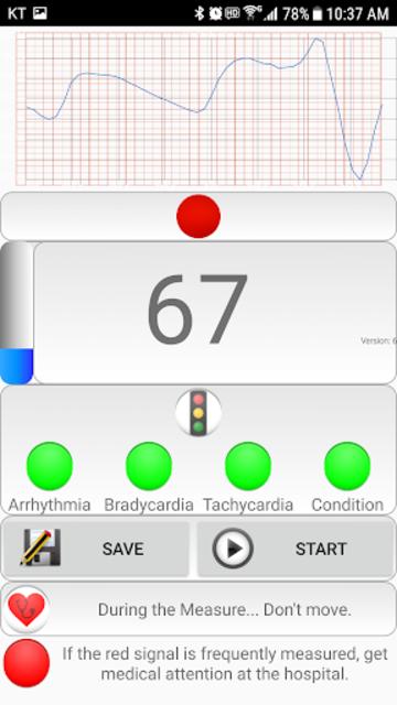 Cardiac diagnosis (heart rate, arrhythmia) screenshot 5