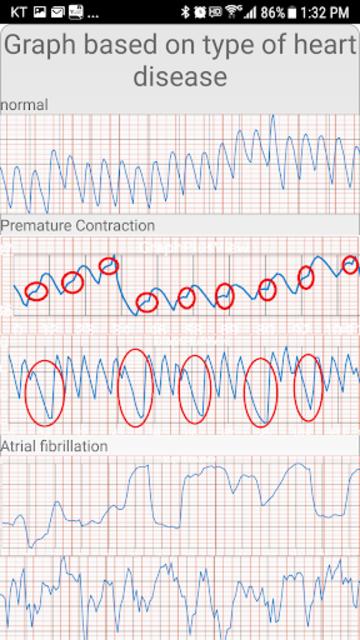 Cardiac diagnosis (heart rate, arrhythmia) screenshot 6