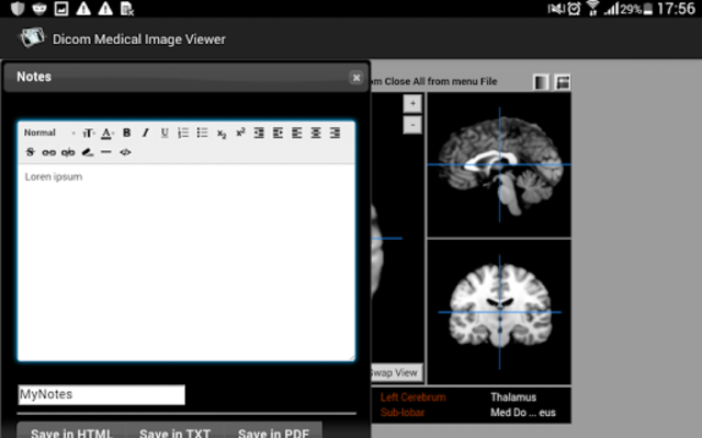 Dicom Medical Image Viewer screenshot 13