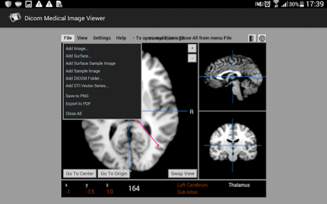 Dicom Medical Image Viewer screenshot 14