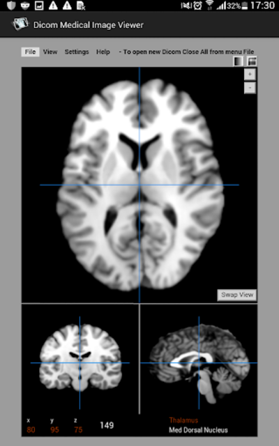 Dicom Medical Image Viewer screenshot 1