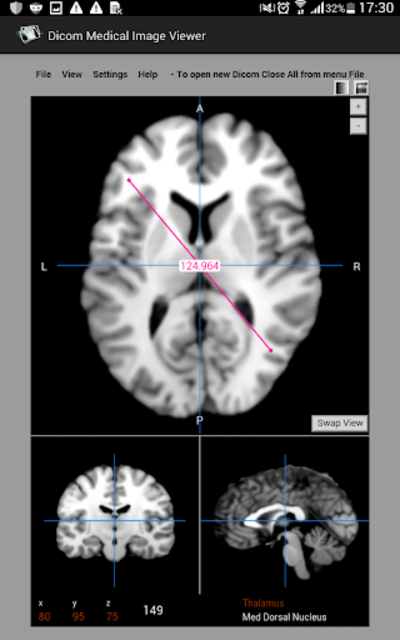 Dicom Medical Image Viewer screenshot 2