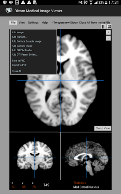 Dicom Medical Image Viewer screenshot 5