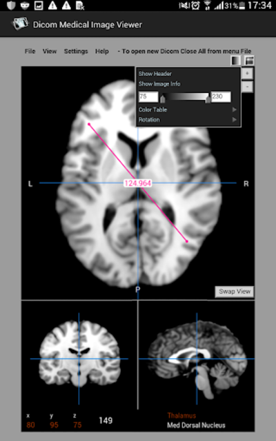 Dicom Medical Image Viewer screenshot 6