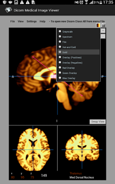 Dicom Medical Image Viewer screenshot 10