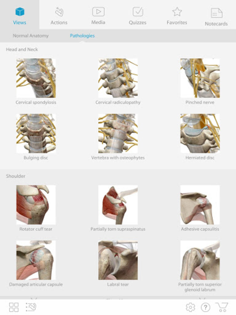 Muscle Premium - Human Anatomy, Kinesiology, Bones screenshot 7