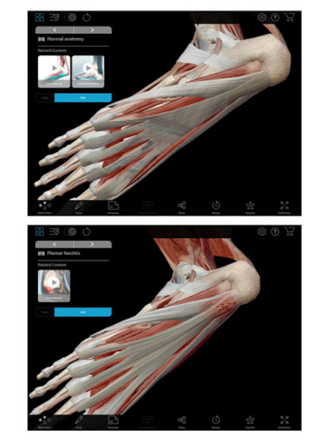 Muscle Premium - Human Anatomy, Kinesiology, Bones screenshot 8