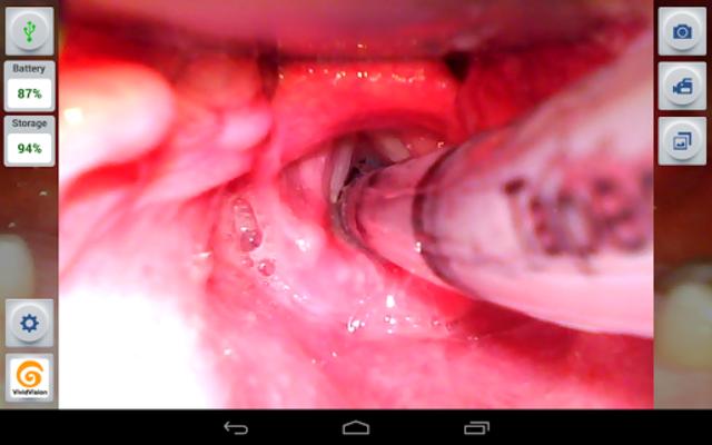 VividVision screenshot 2