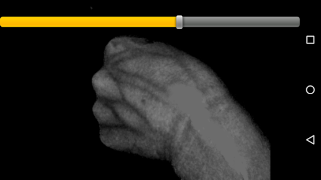 VeinSeek screenshot 3