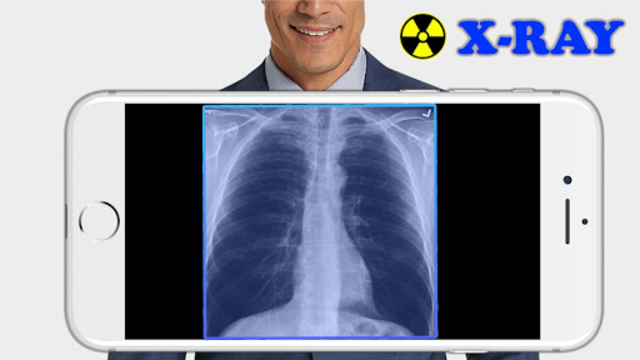 X-Ray Filter Photo screenshot 1