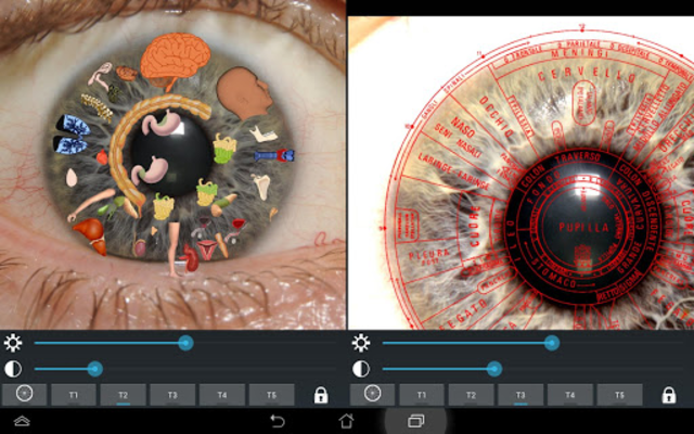 Eye Diagnosis screenshot 6
