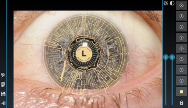 Eye Diagnosis screenshot 8