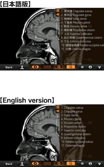 Interactive CT and MRI Anatomy screenshot 3