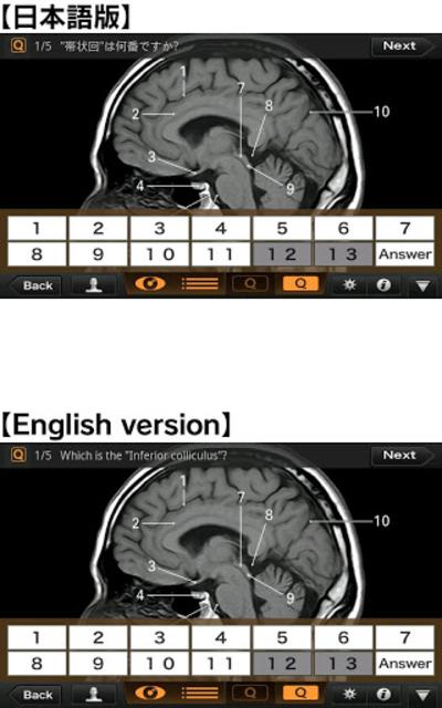 Interactive CT and MRI Anatomy screenshot 4