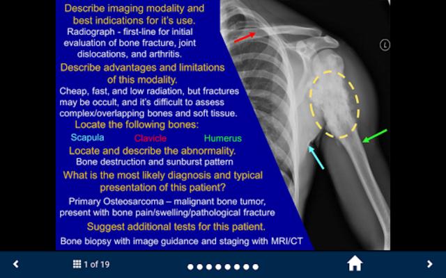 Basic Radiology - SecondLook screenshot 2
