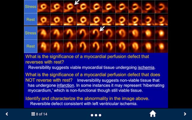 Basic Radiology - SecondLook screenshot 4