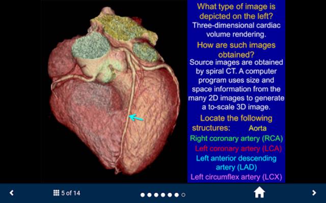 Basic Radiology - SecondLook screenshot 5