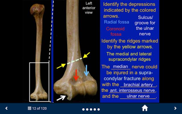 MSK Anatomy - SecondLook screenshot 9