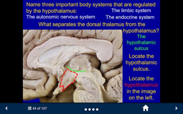 Neuroanatomy - SecondLook screenshot 2