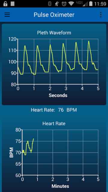 Pulse Oximeter screenshot 3