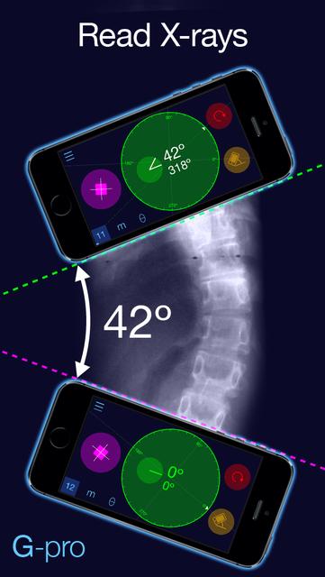 Goniometer Pro screenshot 5